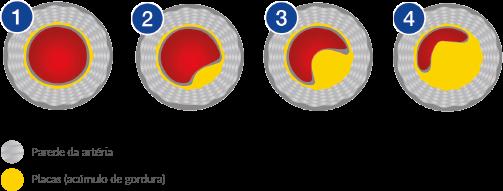 Artérias com acúmulo de placa de gordura